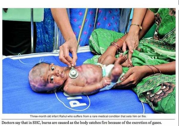 India: Rahul, un bimbo di soli due mesi prende fuoco, gli altri casi nel mondo, perchè accade