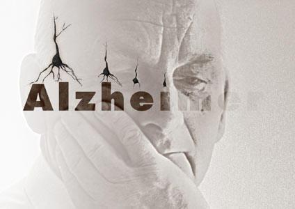 Neurologi italiani scoprono meccanismo della nascita dell'Alzheimer