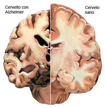 Equipe di ricercatori italiani scopre come si origina l'Alzheimer