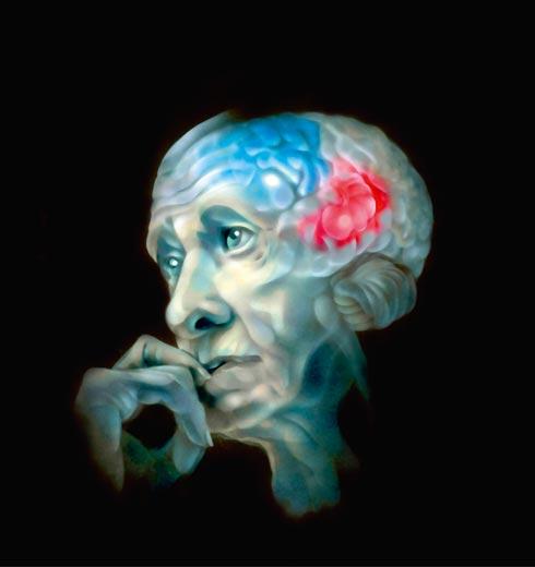 Alzheimer un team italiano ha scoperto come e dove sorge la malattia