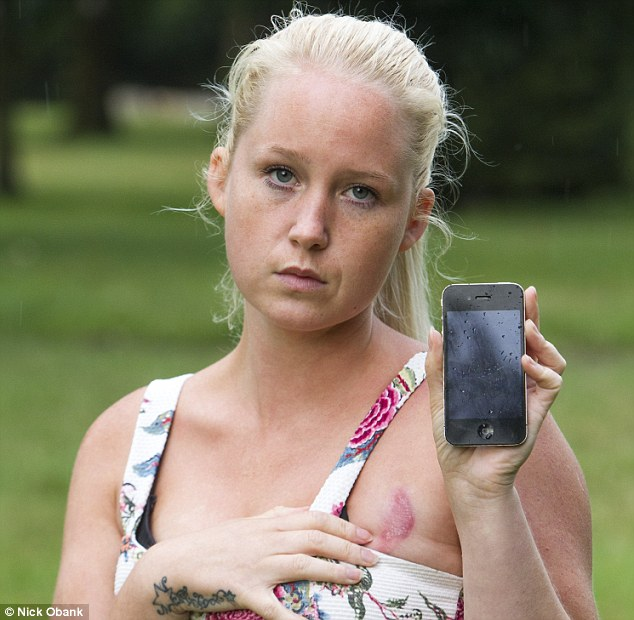 iPhone,  giovane donna inglese si appisola sul device e si ustiona il seno