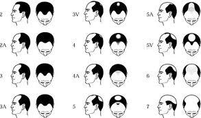 Mai-più-calvi-un-farmaco-rivoluzionario-assicura-la-ricrescita-dei-capelli