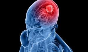 Tumori-al-cervello-una-proteina-riduce-il-rischio-di-cancro-nella-donna