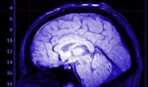 Tumori-al-cervello-le-donne-sono-meno-attaccabili- per-una-proteina