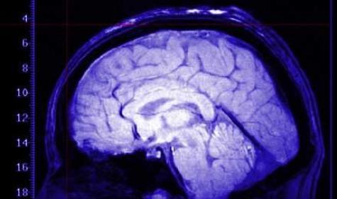 Tumori al cervello le donne sono meno attaccabili per una proteina