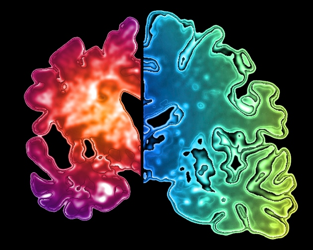 Alzheimer-a-rischio-è-chi-utilizza-sedativi-contenenti-benzodiazepine