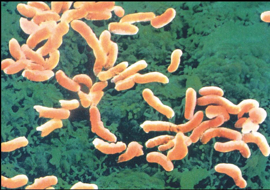 Il batterio dell'ulcera l'Helicobacter può determinare l'infarto STEMI