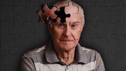 Alzheimer-la-riserva-cognitiva-del-cervello-umano-può-resistere-al-morbo