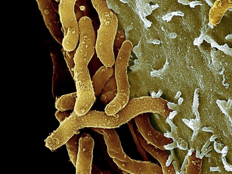 Helicobacter pylori il batterio dell'ulcera è la causa dell'infarto più grave