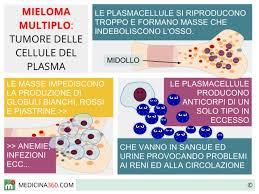 Mieloma-multiplo-nuova-cura-combinata-di-farmaci-e-trapianto-fa-raddoppiare-la-sopravvivenza