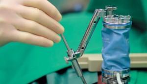 Torino-robot-Mazor-utilizzato-per-trapianto-midollo-spinale