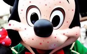 Morbillo-psicosi-per-epidemia-a-Disneyland-in-California