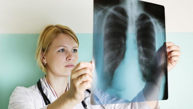 Tumore al polmone un kit per la diagnosi precoce scoperto a Napoli