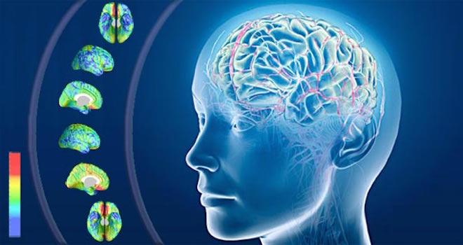 Alzheimer-scoperta-causa-malattia-possibilità-di-nuova-cura
