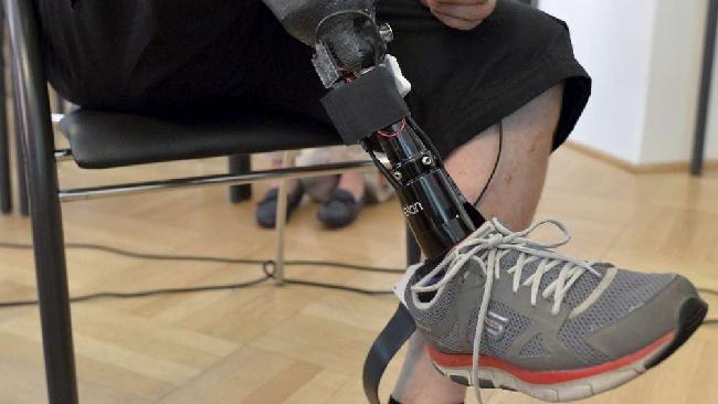 Prima-protesi-alla-gamba-sensibile-realizzata-in-Austria