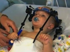 Australia-riattaccata-la-testa-ad-un-bambino-decapitato-dopo-un-incidente