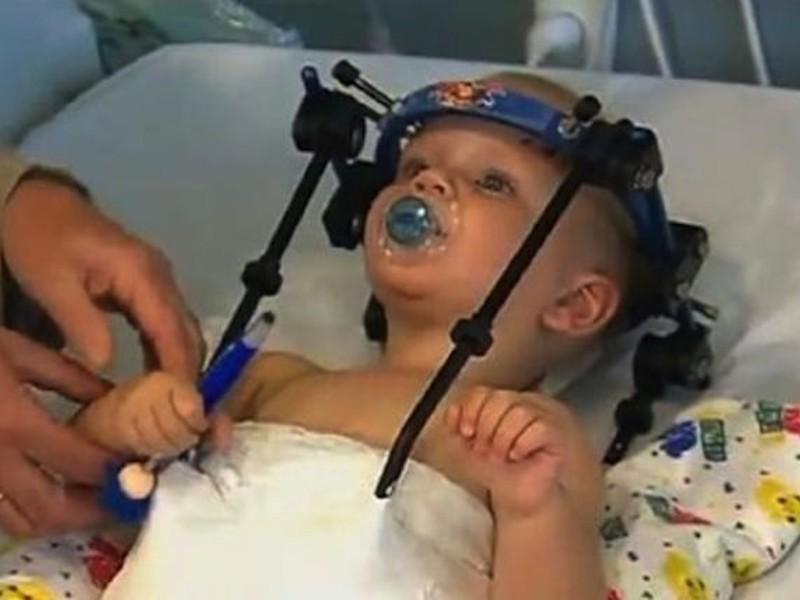 Australia, chirurgia miracolosa riattaccata testa a bambino di 16 mesi decapitato
