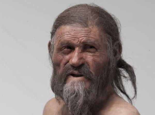 Mummia Otzi aveva l'ulcera trovato il batterio Helicobacter pylori nel Dna