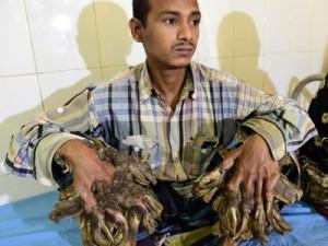 L-uomo-albero-ha-una-patologia-che-trasforma-mani-e-piedi-in-rami