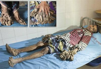 L-uomo-albero-ha-una-malattia-che-trasforma-mani-e-piedi-in-rami