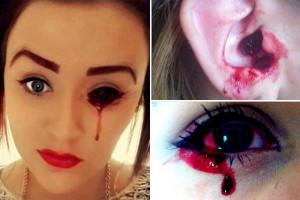Ragazza-che-piange-sangue-per-i-medici-inglesi-è-un-gran-mistero