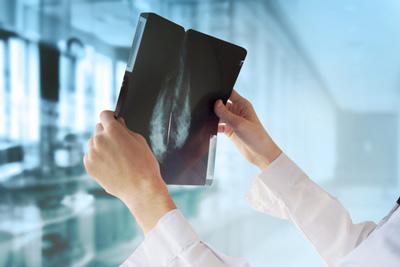 Uomo ha i sintomi del tumore al polmone, si sottopone a tutte le indagini e quello che risulta è incredibile