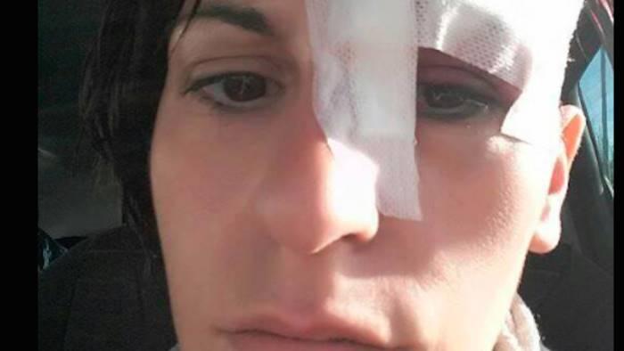 Salerno: donna morsa da un topo posta la foto su facebook