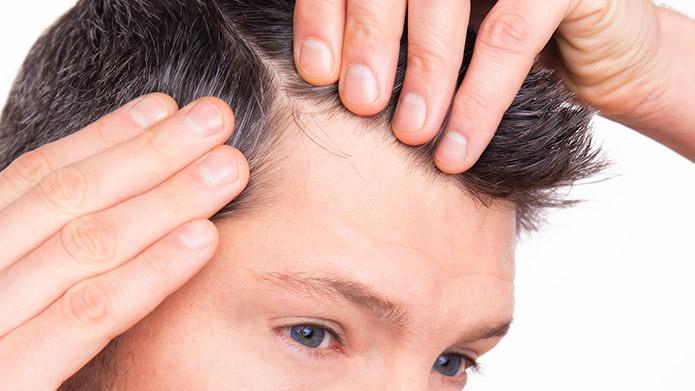 Caduta dei capelli: cause e rimedi