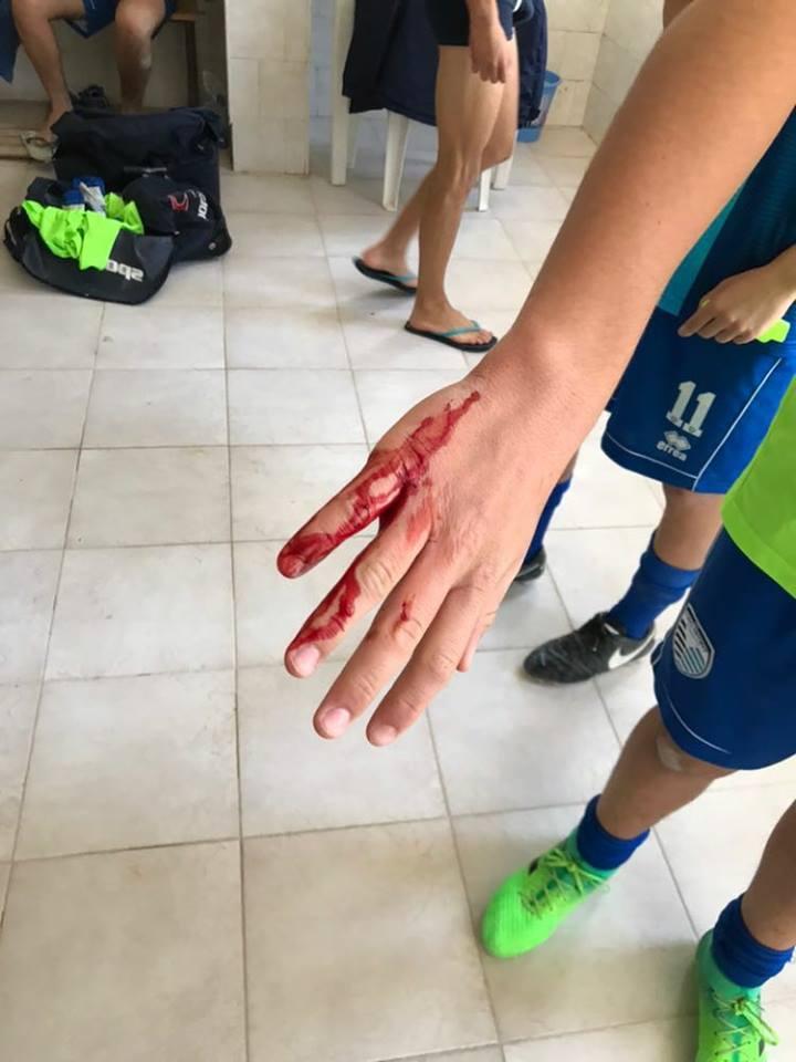 Puglia campionato allievi, maxi rissa a fine partita negli spogliatoi, colpi di spranga contro avversari, quattro i feriti gravi