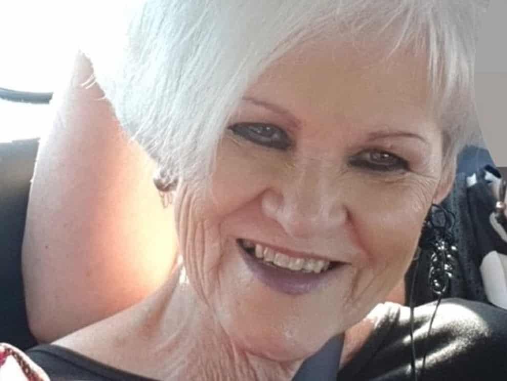 Nonna di 69 anni truffa intera famiglia, facendosi dare 80 mila dollari poi usati per costosi ritocchi estetici