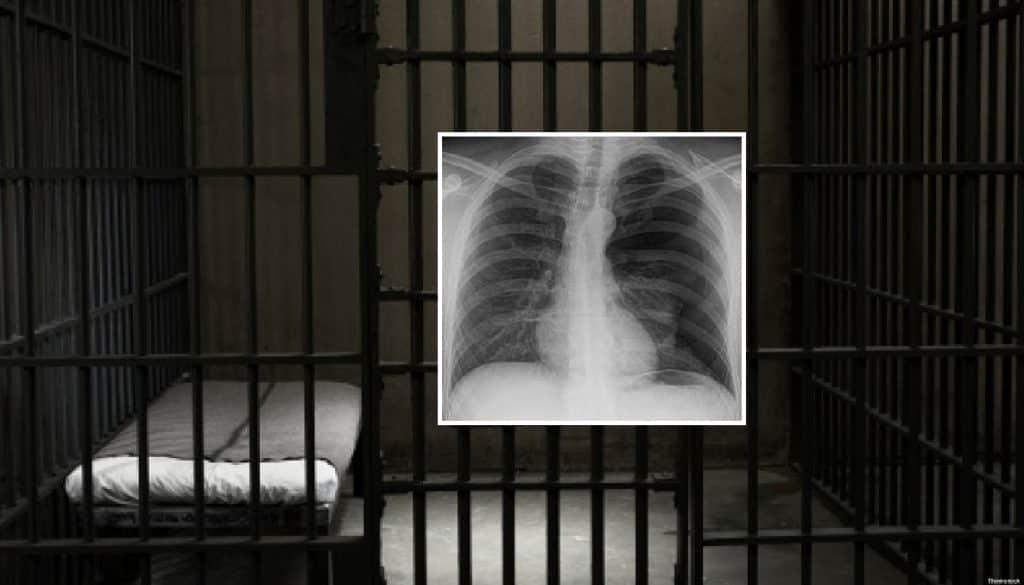 Detenuto accusa dolori lancinanti allo stomaco, da una lastra la verità, aveva ingoiato un cellulare