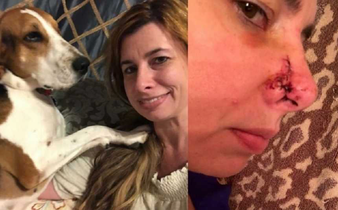 All'improvviso il suo cane le morde il naso, corre in ospedale e medici le dicono che deve ringraziarlo le aveva salvato la vita