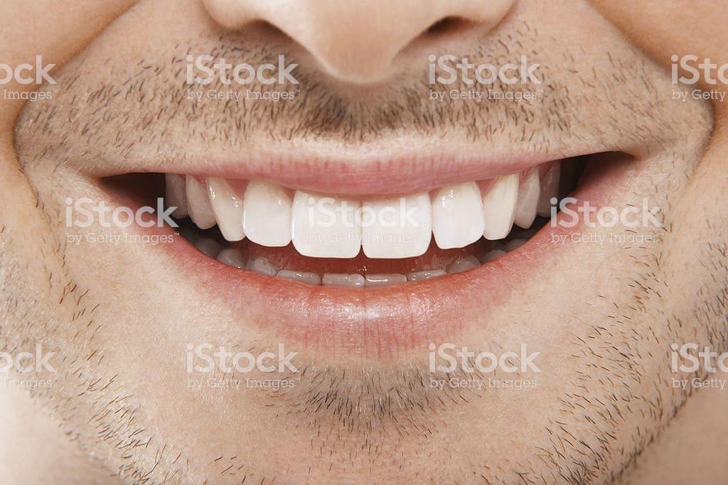 Va dalla ex fidanzata dentista per curare un dente e lei, per vendetta, glieli toglie tutti