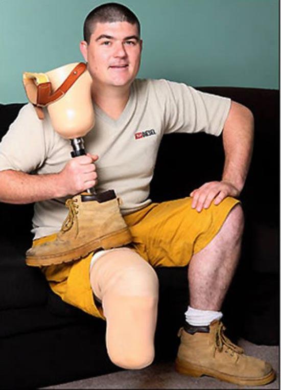 28enne si fa amputare la sua gamba destra perché sin da quando era bambino non gli piaceva