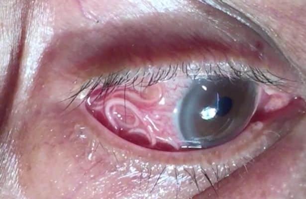 Ragazzo va in ospedale per un fortissimo dolore all'occhio, quando gli infermieri vedono casa ha cominciano a urlare