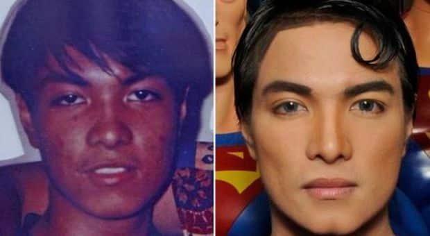 Vuole assomigliare a Superman, si sottopone a tantissime operazioni chirurgiche, cambia colore della pelle e tratti somatici, ora sogna con un ultimo intervento per diventare più alto