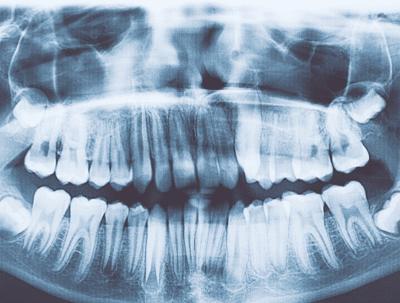 Un bambino di sette anni aveva in bocca più di 500 denti, il video della estrazione è sconvolgente