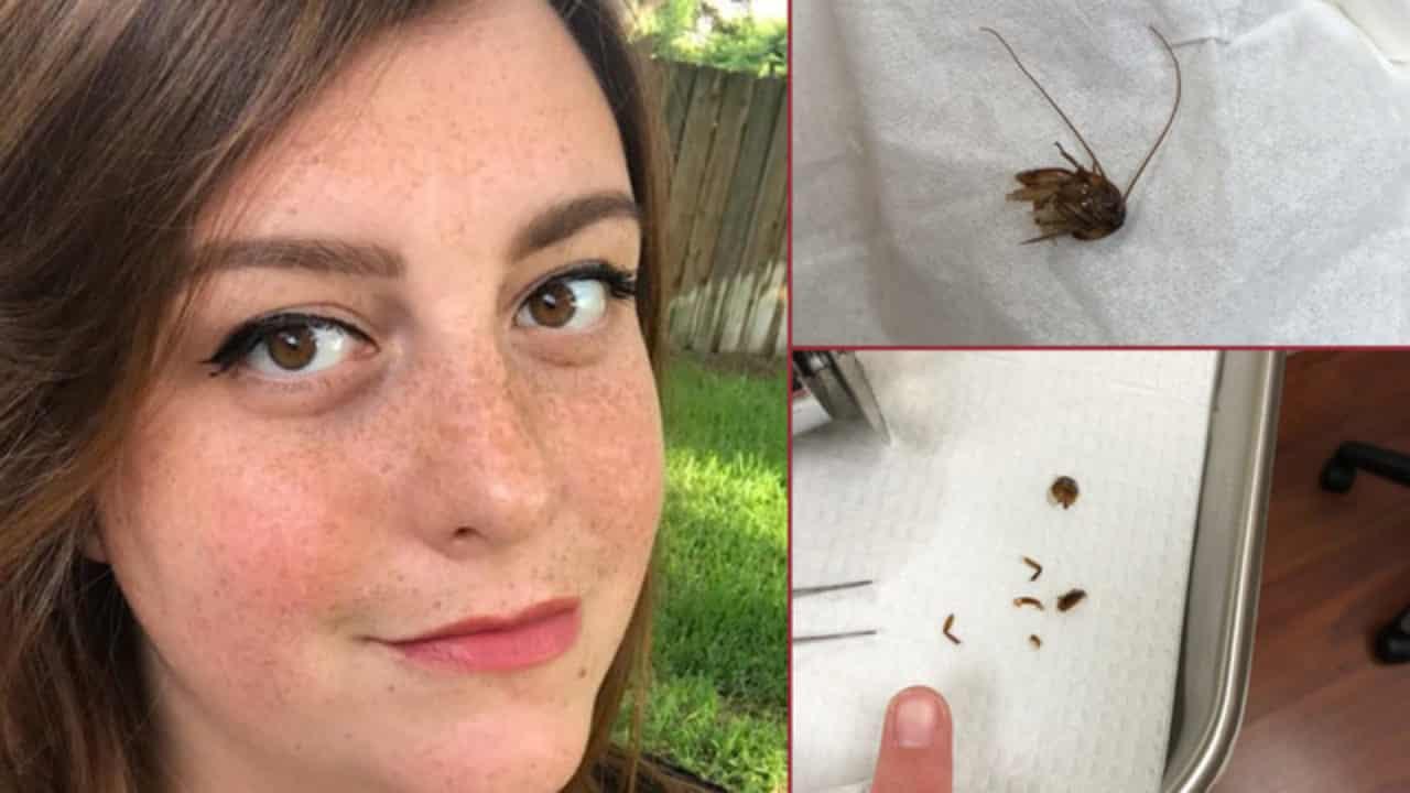 29enne ha dolori continui e insopportabili all'orecchio poi vede delle zampette uscire fuori e scopre qualcosa di orribile