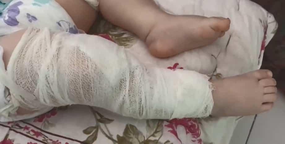 Bambino di due anni ricoverato, i medici gli trovano 50 aghi nel corpo