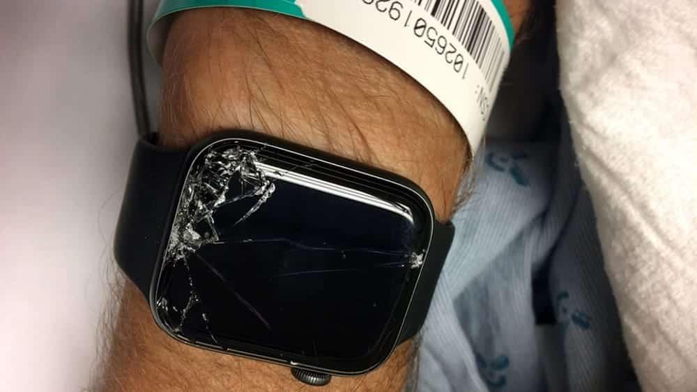 Uomo cade dalla bici, sbatte la terra e sviene è in condizioni critiche , a salvargli la vita però ci pensa il suo orologio