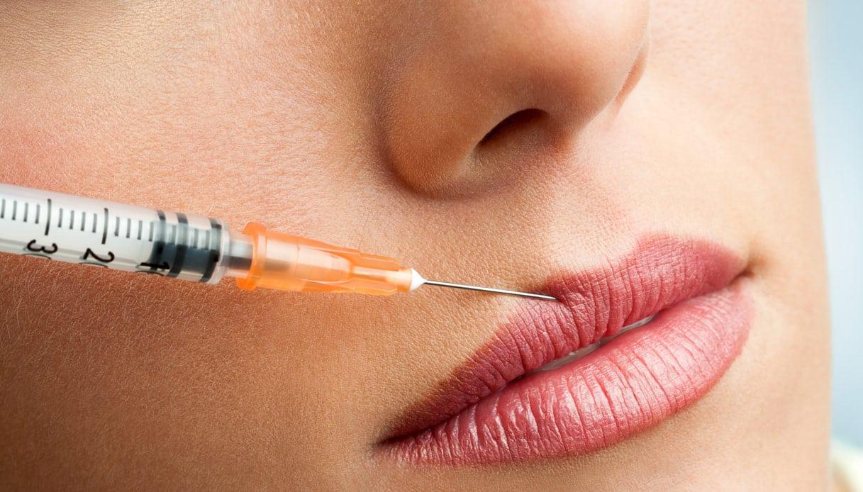 """""""Vatti a fare il Botox"""", la giornalista dice no e la cacciano dalla tv"""