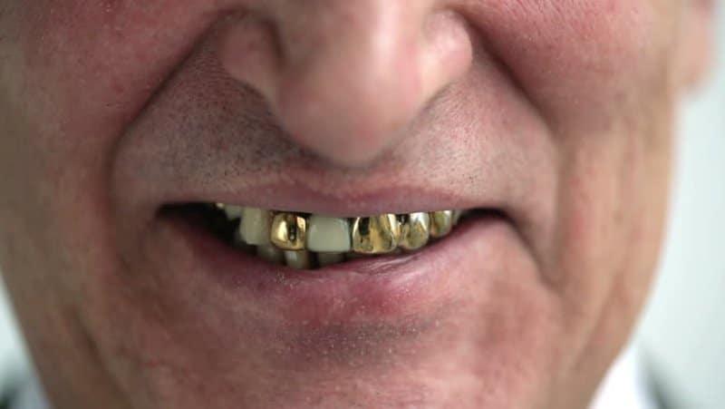 Uomo si trova invischiato in una sparatoria, sfugge alla morte grazie alla sua dentiera