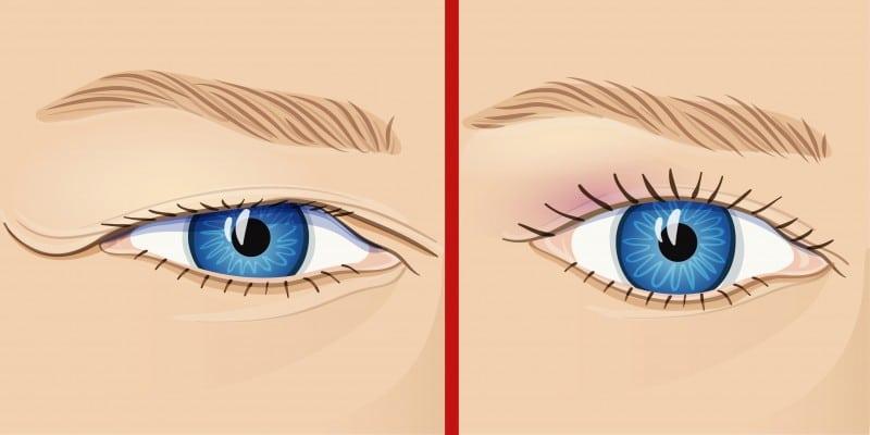 Donna fa un'operazione agli occhi e da quel momento non riesce più a chiuderli