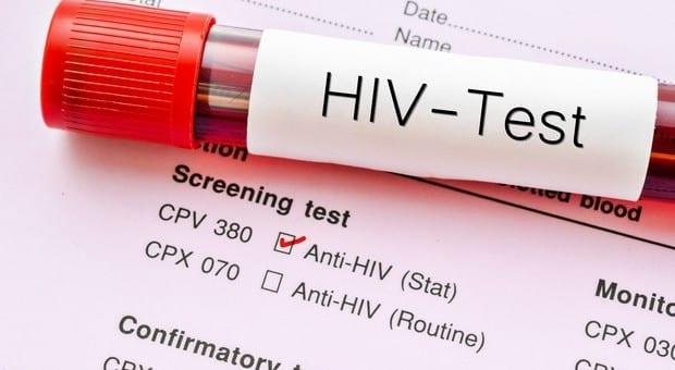 Allarme hiv , dopo 19 anni è stato scoperto un nuovo ceppo