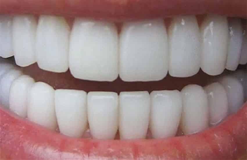 I problemi ai denti possono provocare problemi al cuore