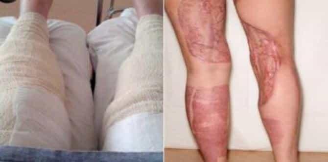 Si depila le gambe e va in spiaggia, dopo qualche giorno va in coma