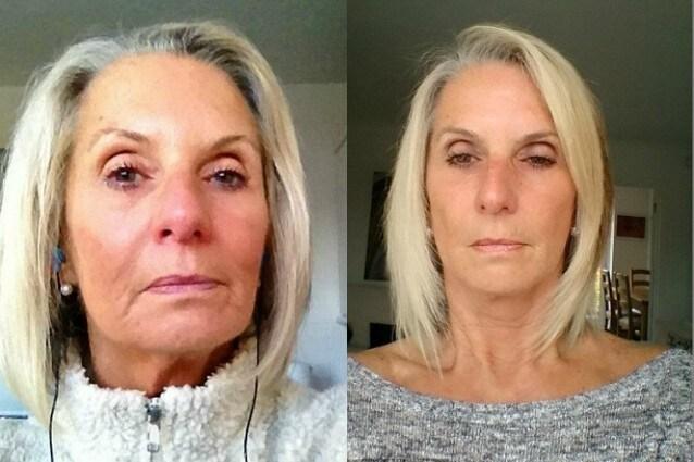 63enne si sente ancora una ragazzina, decide di farsi un lifting per il selfie perfetto spendendo una fortuna