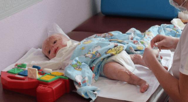 Bambino nasce con l'ittero, lo mettono sotto la lampada per la fototerapia e la lampada esplode