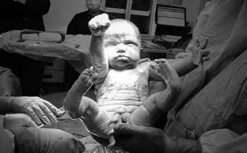 Nasce in una posa incredibile, la mamma posta la foto sui social e fa il pieno di like