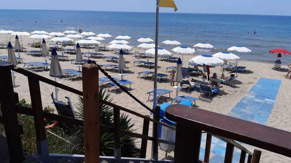 In uno stabilimento balneare, turista allontanato subito dalla spiaggia aveva 38,5 di febbre